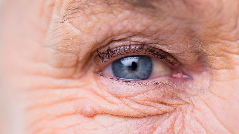 Degeneración Macular Asociada con la Edad (DMAE)
